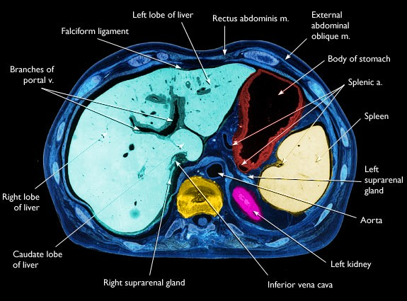 Anatomy of liver mets ct with multiple liver mets ct advanced liver mets ccuart Images