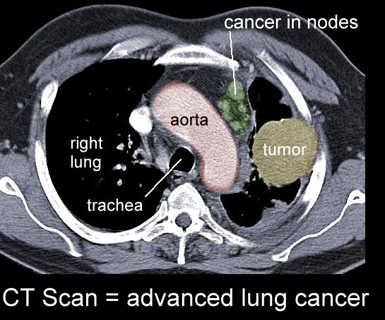 Xrays and CT Scans of Lung Cancer