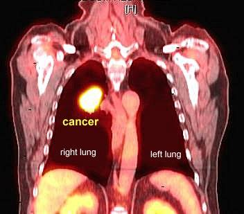 Understanding the basics of pet scans. and atlas here