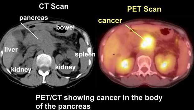 Lung cancer ct scans just for older heavy smokers dating 3