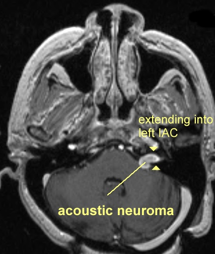 What is an Acoustic Neuroma