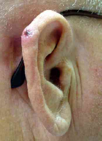 basal-cell-ear.jpg (9788 bytes)