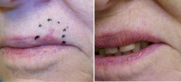 radiation for skin cancer of the lip