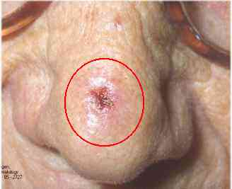 Radiation For Cancer Of The Nose