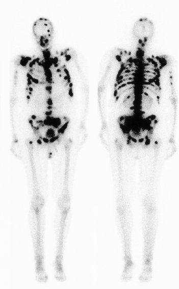 ... medicine bone scan showing multiple bones metastases (black areas
