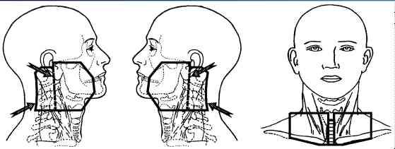 Base Of Tongue Cancer