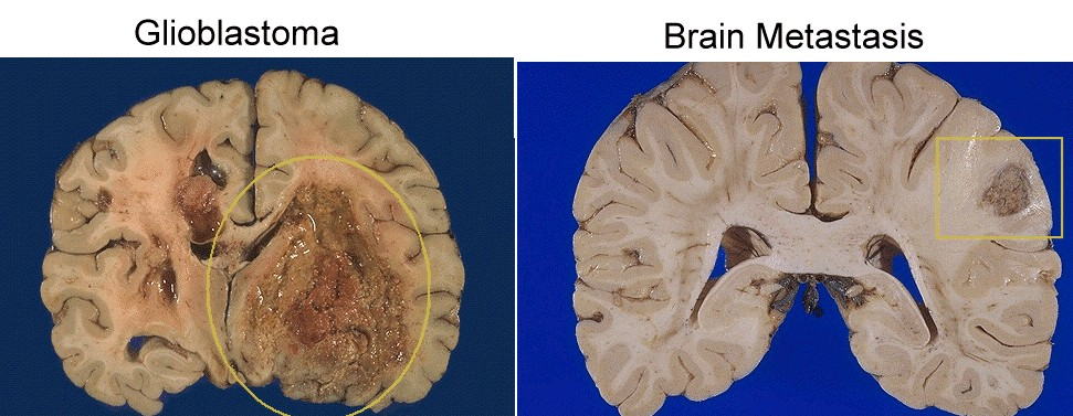 Brain Anatomy And Images Gross