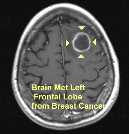 Brain metastases in breast cancer