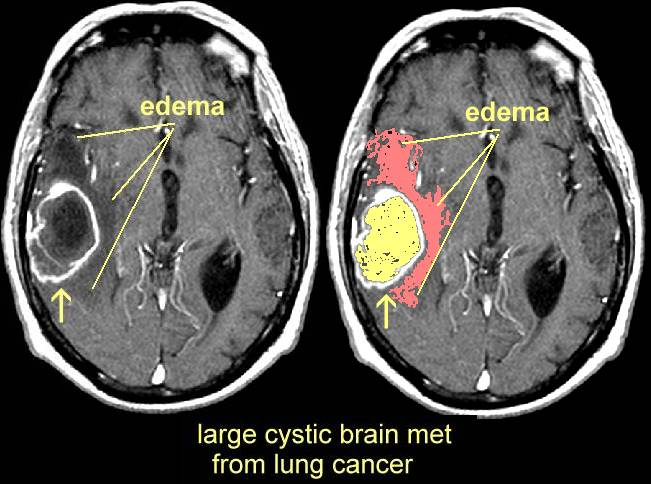 Rare mutation may extend survival in lung cancer patients with brain metastases