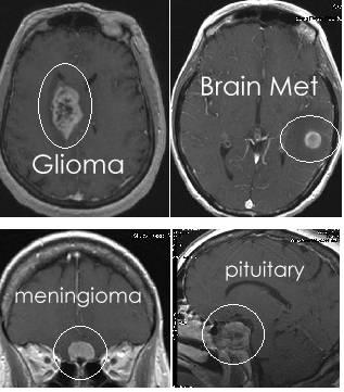 MRI Brain Tumor