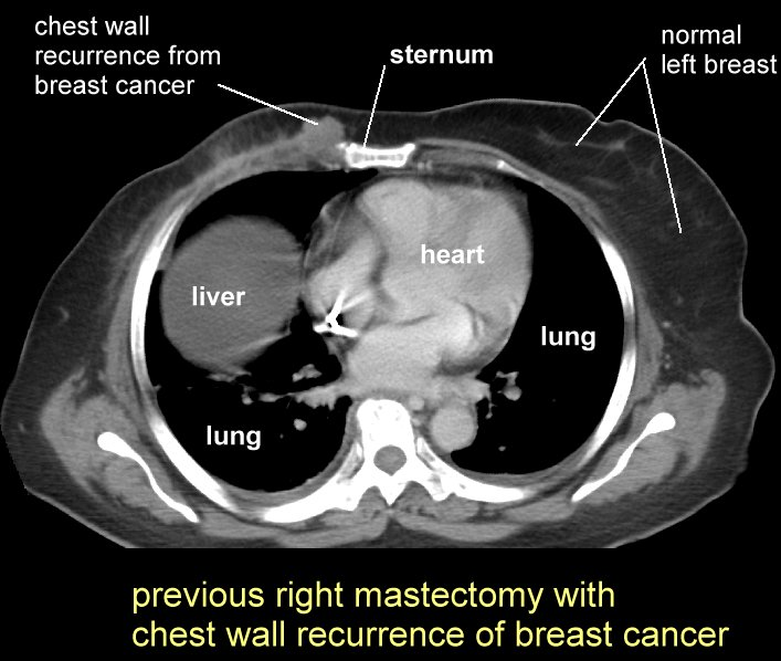 how to detect lung cancer ct scan