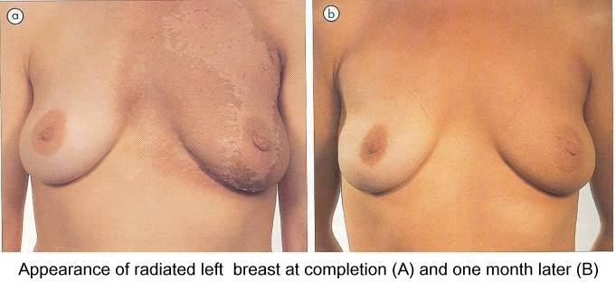 How do breast lumpectomy guidewires work