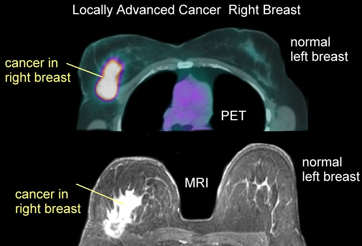 MRIs New Role After Breast Cancer Diagnosis - Breast
