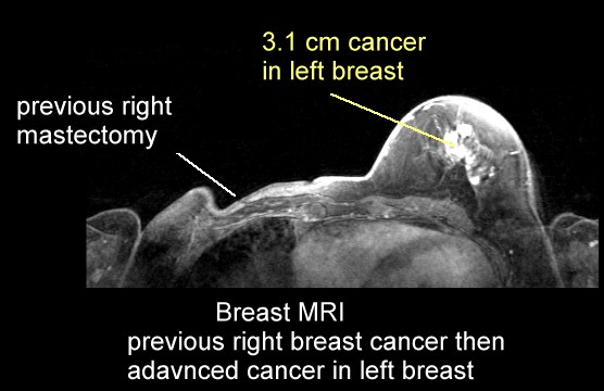 how to read a breast mri