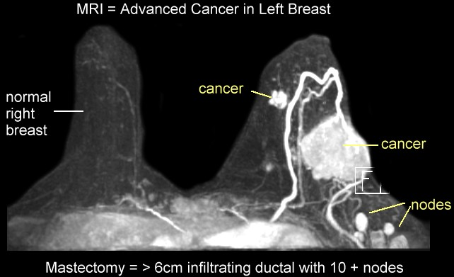 Something is. Mri breast cancer diagnosis