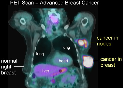 Pet scans for breast cancer