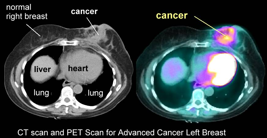 Pet and scan and breast and cancer