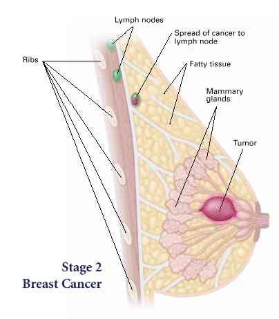 breast cancer phase 2