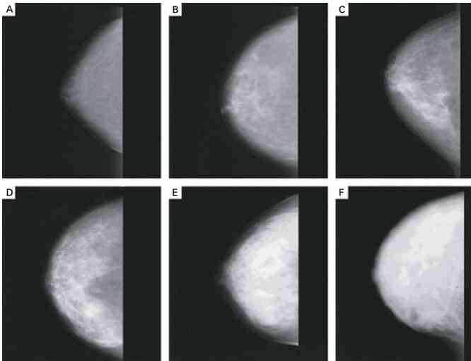 Slide show: Female breast anatomy - Mayo Clinic