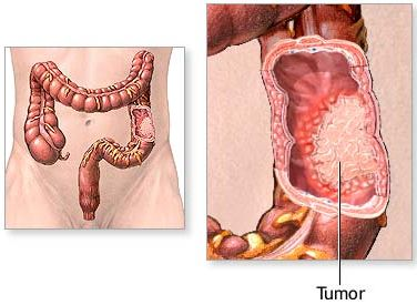 colon_cancer_adam.jpg (22938 bytes)
