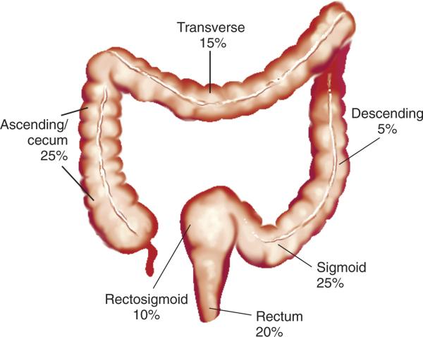 imagen cancer de colon: