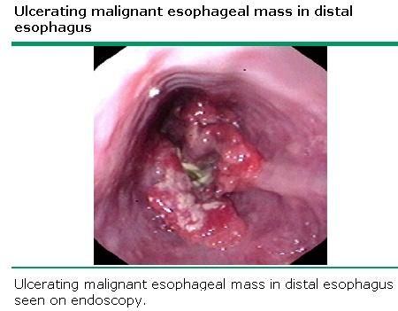 Esophageal
