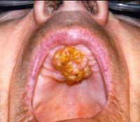 Pictures of Hard Palate Cancer http://www.aboutcancer.com/hard_palate.htm