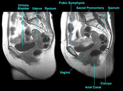 Normal Gynecologic Anatomy