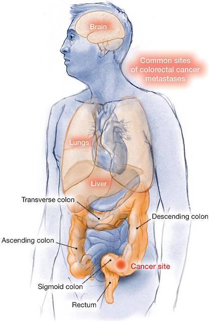 metastatic cancer colon)