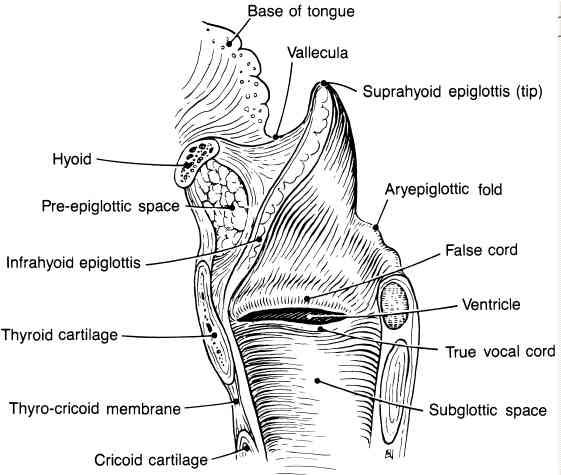 Subglottic Larynx Cancer