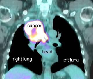 pet scans as a diagnostic procedure Positron emission tomography (pet) scans coverage cpt code: 78459 myocardial imaging positron emission tomography (pet) is a diagnostic imaging procedure used to.