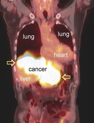 Anatomy of Liver Mets