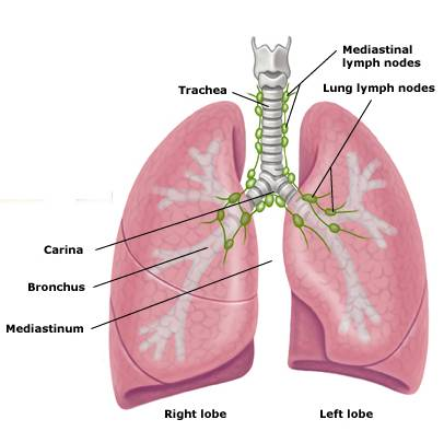 Normal lung anatomy lymph nodes here in the chest or mediastinum here here here more nodes nodes simple nodes simple ccuart Images