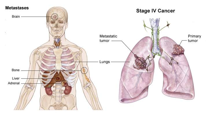 lung_stage_IV_asco.jpg (30771 bytes)