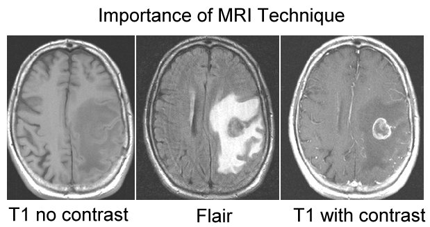 MRI Images of Brain Mets