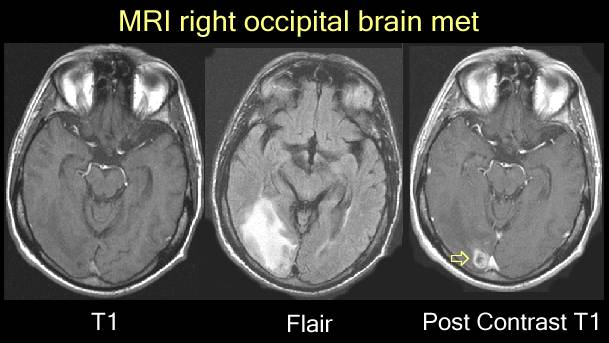 Mri images of brain mets for What does contrast do