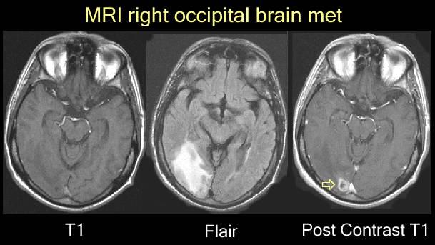 Mri Images Of Brain Mets