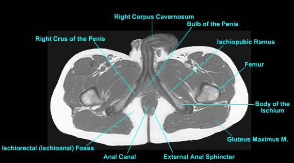 prostate anatomy ct scan