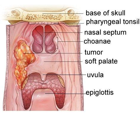 Nasopharynx Cancer Anatomy And Images