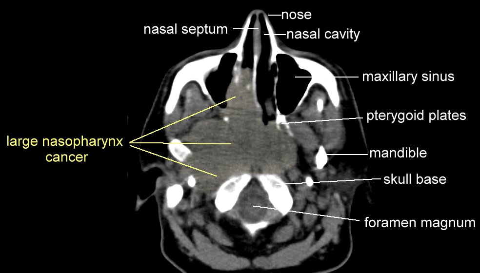 Nasopharynx Cancer Anatomy and Images