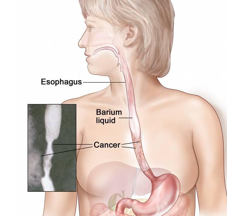 Anatomy of the Esophagus
