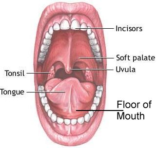 Cancers of the Floor of the Mouth
