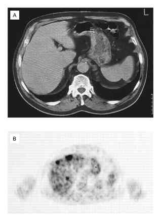 Diagnosis of Occult Liver Metastases in a Patient with Lung Cancer