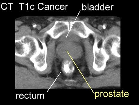 (PDF) Miért kell a PET/CT az uroonkológiában? | K. Borbély - creditime.hu