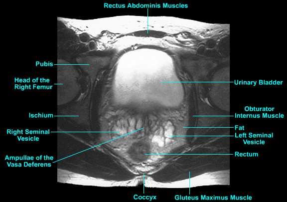 Prostate gland anatomy images