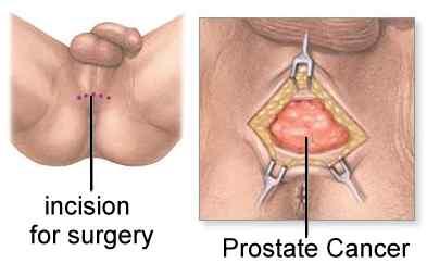 prostate gland removal surgery)