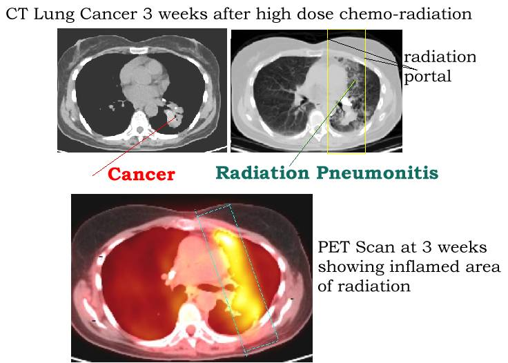 Side Effects Of Lung Radiation