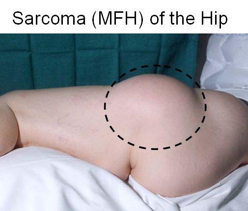 Sarcoma Basic Information