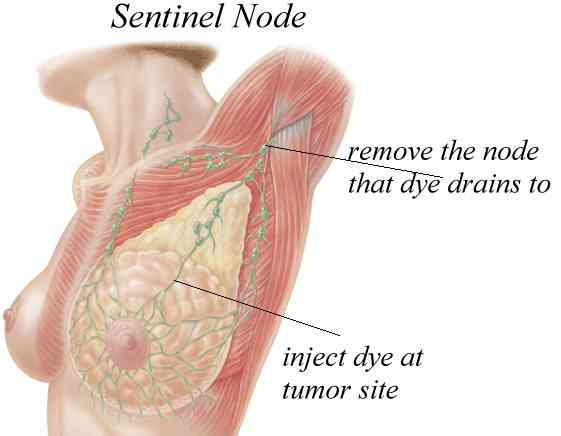 Breast Cancer and the Sentinel Node Biopsy - WebMD