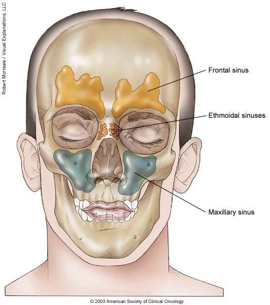 Paranasal sinus cancer